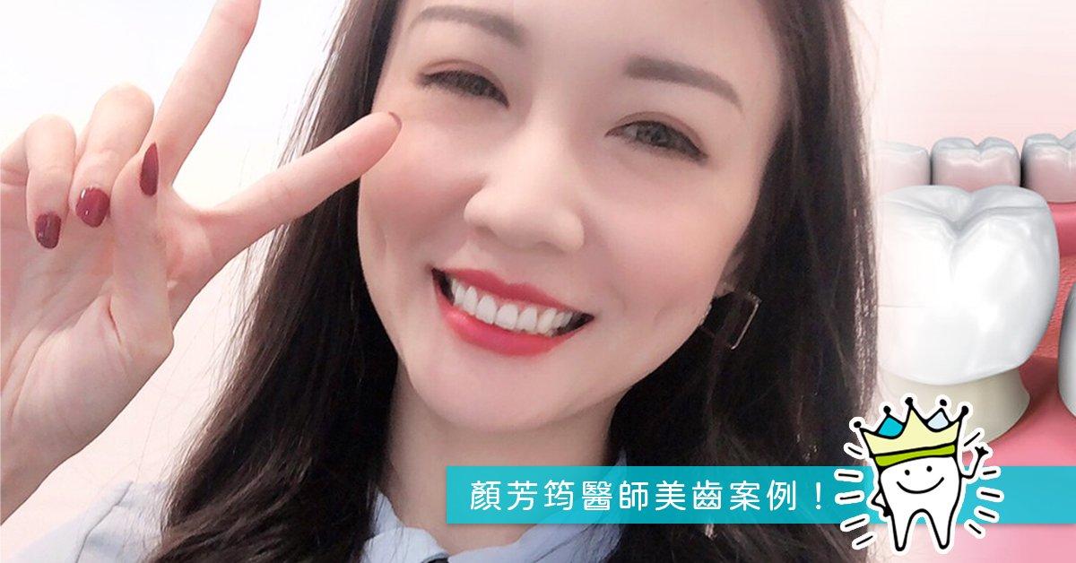You are currently viewing 全瓷冠「微調整」,重建迷人微笑曲線