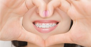 Read more about the article 牙齒矯正與美白貼片,想變美該如何選擇?
